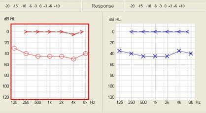 conductive_audiogram
