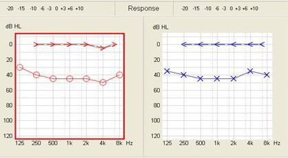 conductive_audiogram