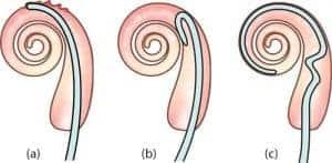 điện cực ốc tai MEDEL Flex