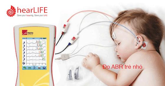 điện thính giác thân não ABR