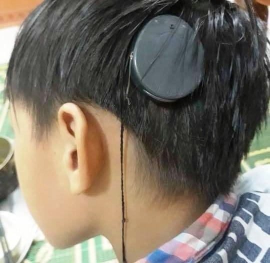 ốc tai trợ thính