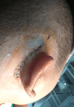 phẫu thuật ốc tai điện tử