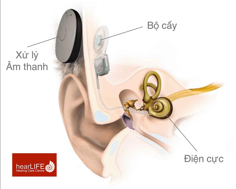 ốc tai điện tử là gì